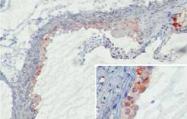 AM26332PU-N - Mannan Binding Protein