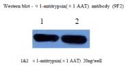 AM26399PU-L - Alpha-1-antitrypsin