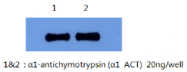 AM26405PU-L - Alpha-1-antichymotrypsin / ACT