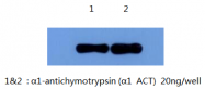 AM26408PU-L - Alpha-1-antichymotrypsin / ACT
