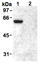 AM26448AF-N - Vimentin