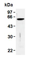 AM26458AF-N - Vimentin
