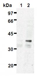 AM26480AF-N - ES1 protein homolog