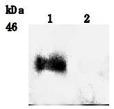 AM26512SU-N - Podoplanin