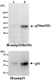 AM26537AF-S - TP53 / p53