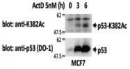 AM26538AF-S - TP53 / p53