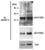AM26539AF-S - TP53 / p53