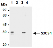 AM26561AF-N - SOCS1