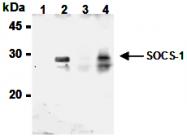 AM26561BT-N - SOCS1