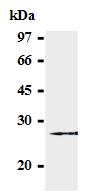 AM26562AF-N - SOCS3 / CIS3