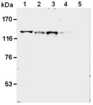 AM26563AF-N - SREBF1 / SREBP1