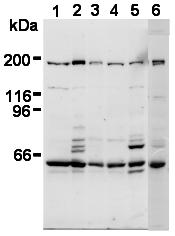 AM26568AF-N - Separin / ESPL1