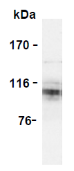 AM26575PU-N - Amyloid beta A4 protein / APP
