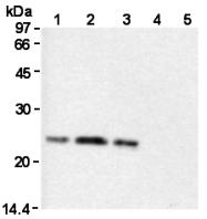 AM26578AF-N - Glutathione peroxidase 1 / GPX1