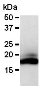 AM26581AF-N - RNASE2