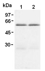 AM26584AF-N - TRAF1 / EBI6