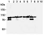 AM26592AF-N - MCM3