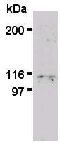 AM26594AF-N - PML / RNF71