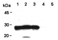 AM26596AF-N - DJ-1 / PARK7