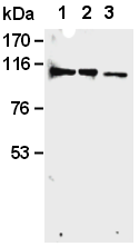 AM26598AF-N - Retinoblastoma-associated protein / RB1