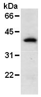 AM26599AF-N - GFP