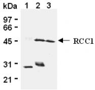 AM26601AF-N - RCC1 / CHC1
