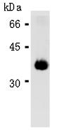 AM26615AF-N - Apolipoprotein E / Apo E
