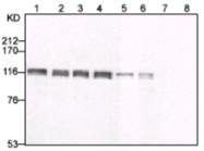 AM26616AF-N - MCM2