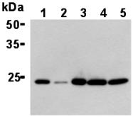 AM26634AF-N - TPT1 / TCTP