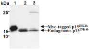 AM26641AF-N - CDKN2B / p15INK4b