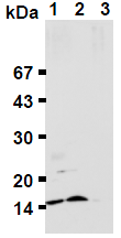 AM26659AF-N - Ubiquitin