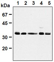 AM26661AF-N - CDK1