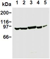 AM26667AF-N - PIK3R1 / GRB1