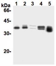 AM26674AF-N - Cyclin D1
