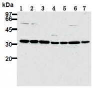 AM26676PU-N - CDK2