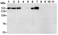 AM26695AF-N - Acinus / ACIN1
