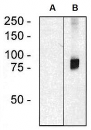 AM26710RP-N - ARHGEF4