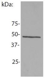 AM26753PU-N - NCK1