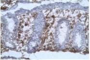 AM31223AF-N - CD40