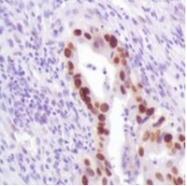 AM32442PU-M - TP53 / p53