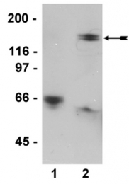 AM32503PU-N - PPP1R12A / MYPT1