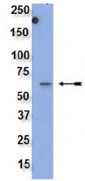 AM32524PU-N - Src Family (WTAPE)