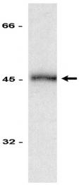 AM32527PU-N - CD95 / FAS