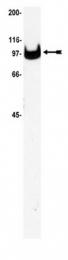 AM32528PU-N - ATP1A3