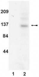 AM32529PU-N - Tyrosine-protein kinase JAK3
