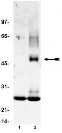 AM32533SU-N - FCER1A