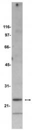 AM32541PU-N - Bcl-2-like 8