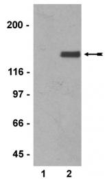 AM32559SU-N - Neurofilament  M (160 kD)