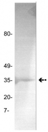 AM32561PU-N - Prothrombin (F2)
