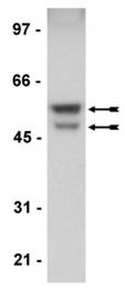 AM32563PU-N - GSK3 alpha